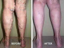 Myth Busters The Truth About Varicose Veins