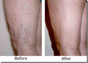 best way to treat varicose veins